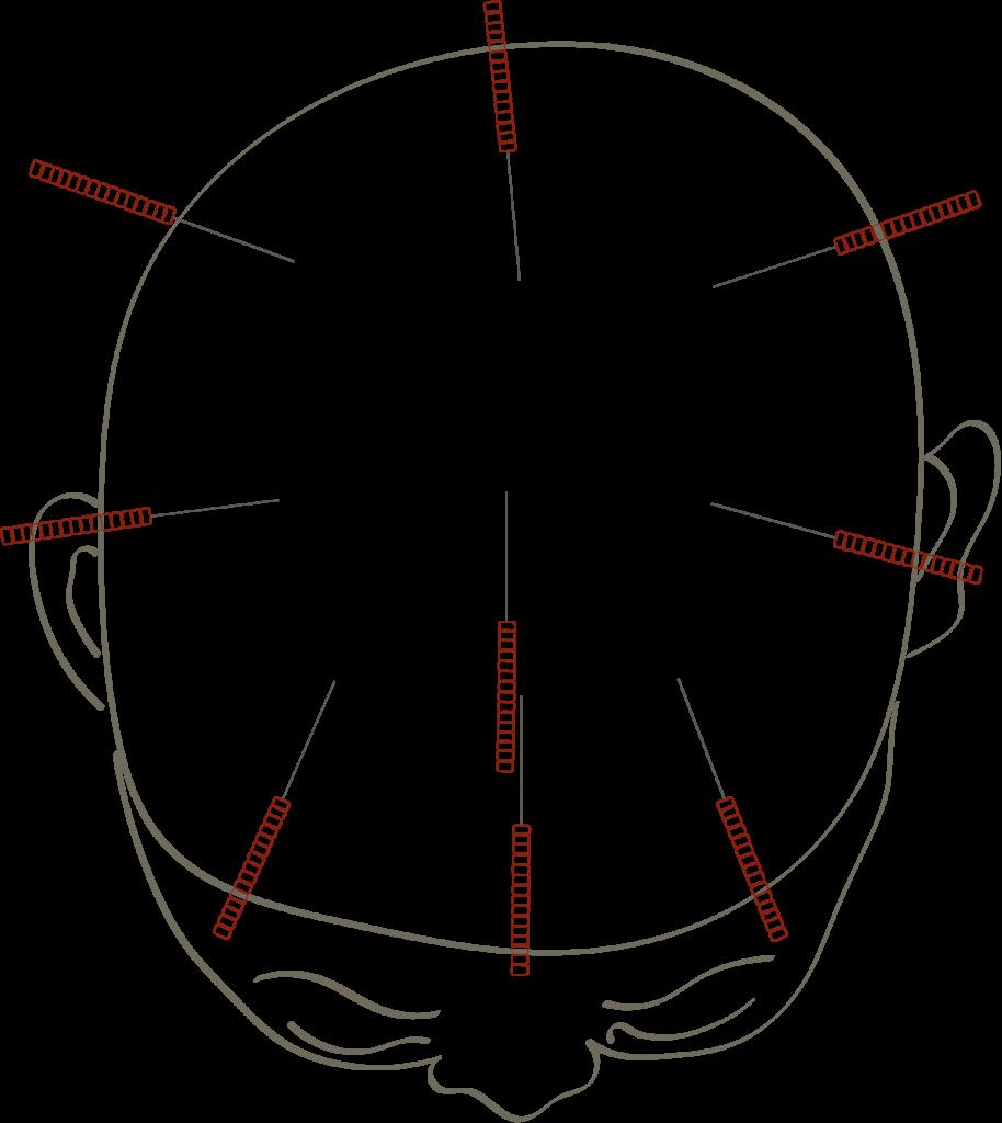 Skalp Akupunktur