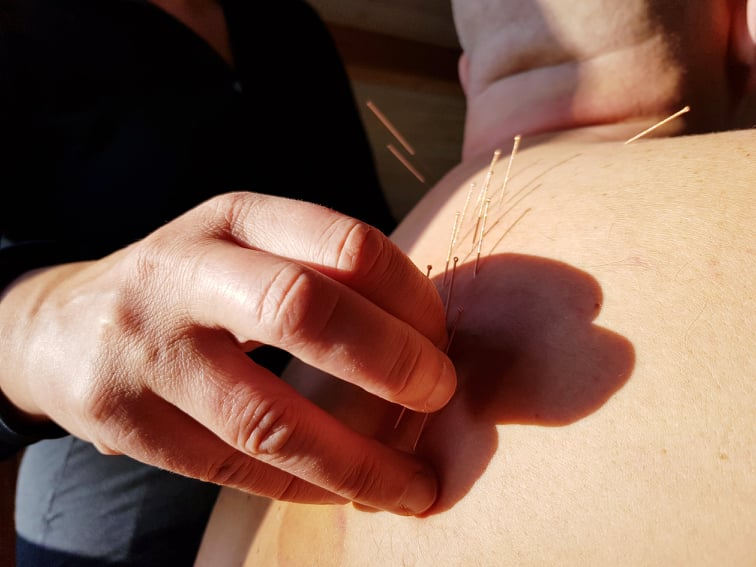 AkupunkturAkademiet thorax kursus akupunktur